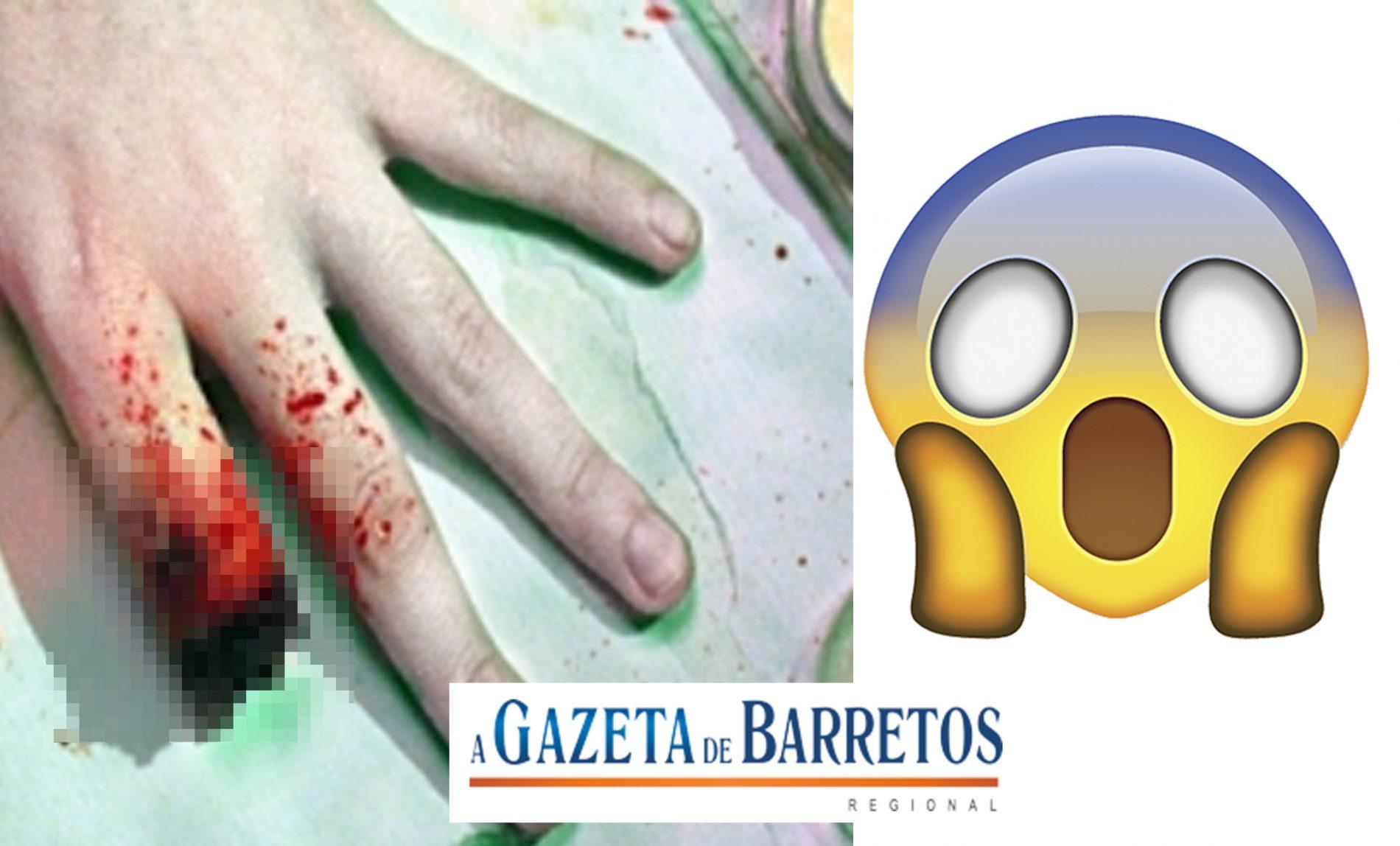ARARAQUARA: marido arranca parte do dedo da mulher no dente!