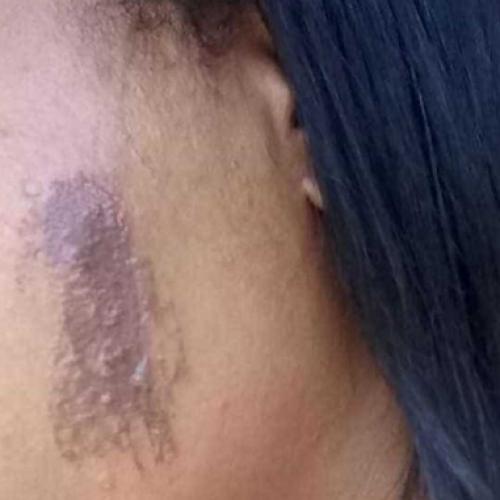 REGIONAL: Cuidadora de idosos é torturada durante assalto