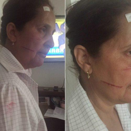 SERRA AZUL: Vereadora é agredida por mãe de funcionária pública investigada por ocupar cargo irregular