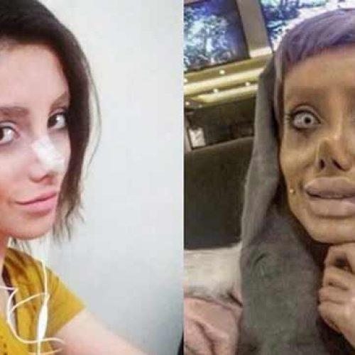 Falso:  Moça de 29 anos não fez 50 cirurgias para parecer Angelina Jolie