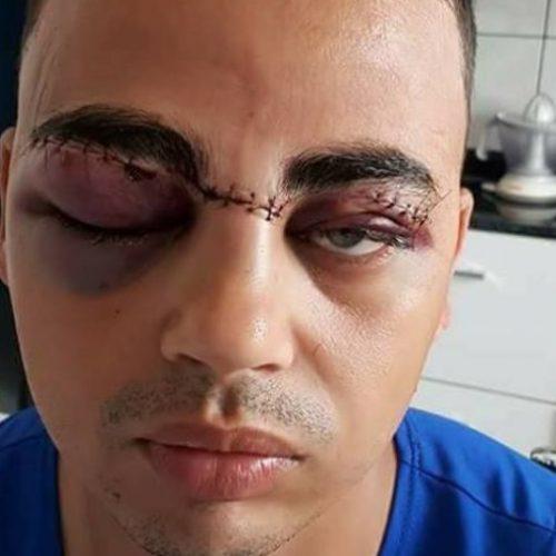 REGIÃO: Jovem tem rosto cortado por cerol e expõe risco em rede social