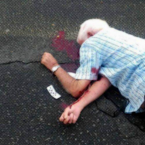BARRETOS: Idoso é atropelado na Avenida Engenheiro José Domingos Ducati