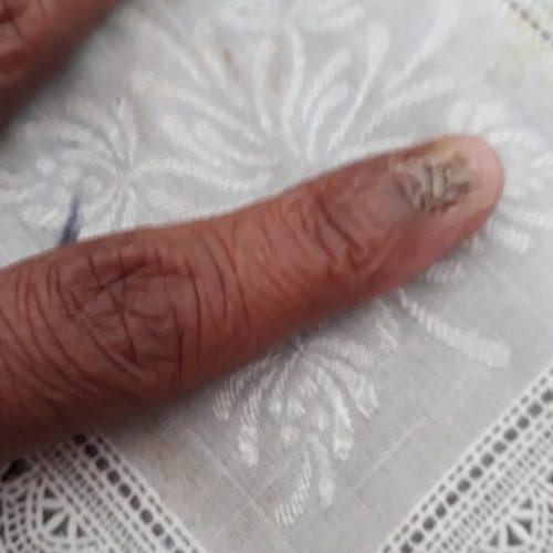 REGIÃO: Mulher perde duas unhas ao tentar evitar roubo de veiculo