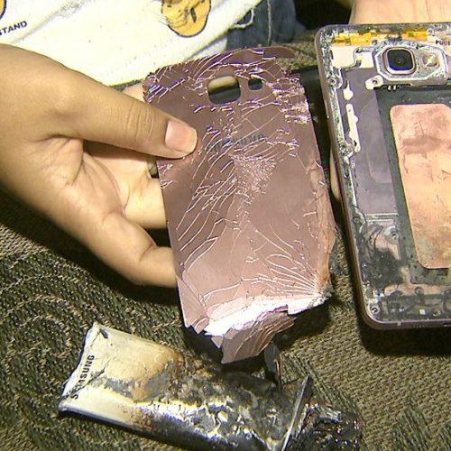 REGIÃO: Estudante sofre queimaduras de 3º grau após celular explodir