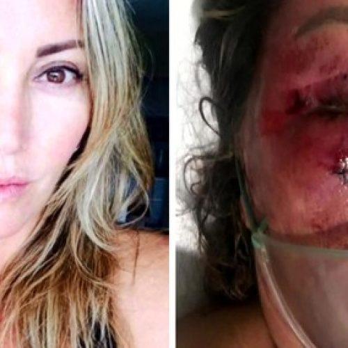 PERIGO ONLINE: Mulher é espancada no Rio e jovem é preso em flagrante
