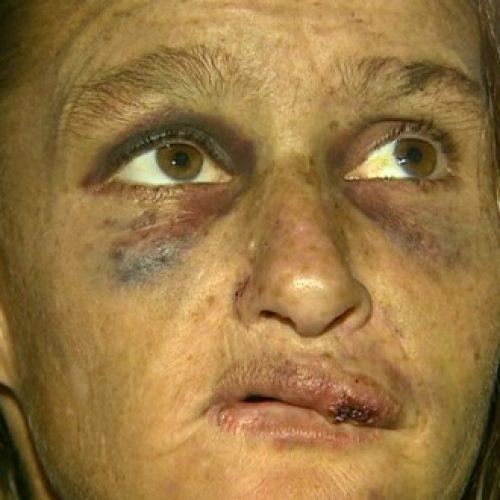 REGIÃO: Jovem confessa estupro após espancar e arrastar catadora de sucata