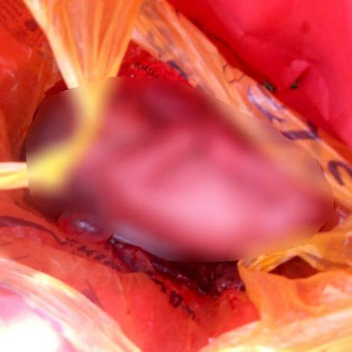 REGIÃO: Morre o bebê abandonado em sacola plástica em vicinal de Avanhandava