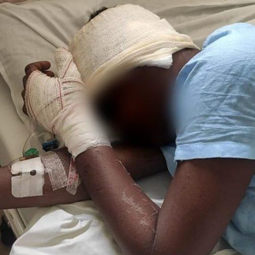 REGIÃO: Jovem trans é espancada, esfaqueada e tem parte da orelha decepada por dupla